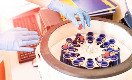 Para que servem os anticorpos?