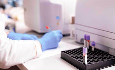 Por que exames devem ser realizados só em laboratórios?